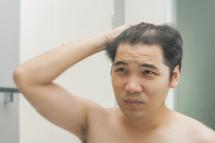 Could A Change In Lifestyle Reduce Signs Of Male Pattern Baldness Inspiration Male Pattern Baldness