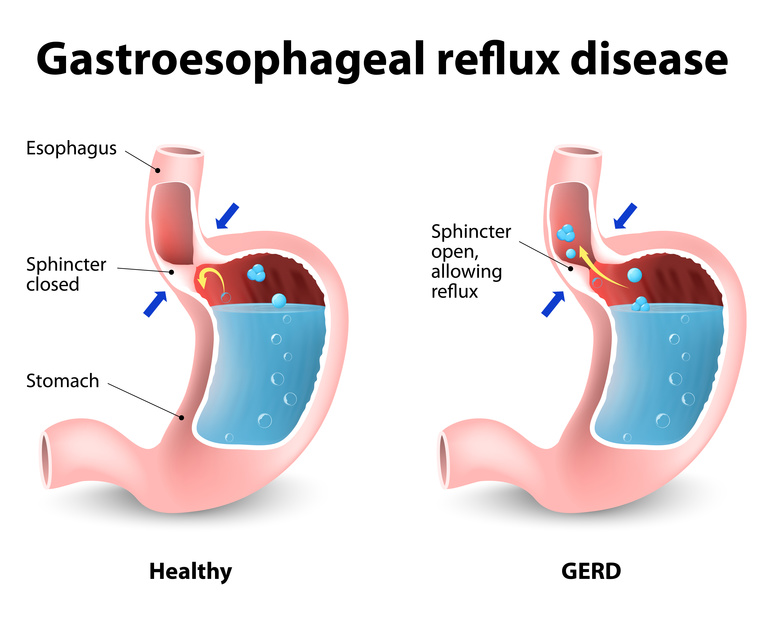 acid reflux medication